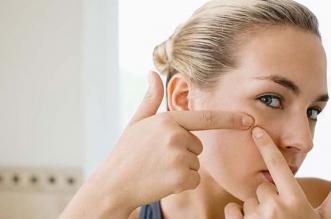 Os melhores medicamentos para as espinhas. Pomada e creme eficaz para a acne? Ranking do produto 2019