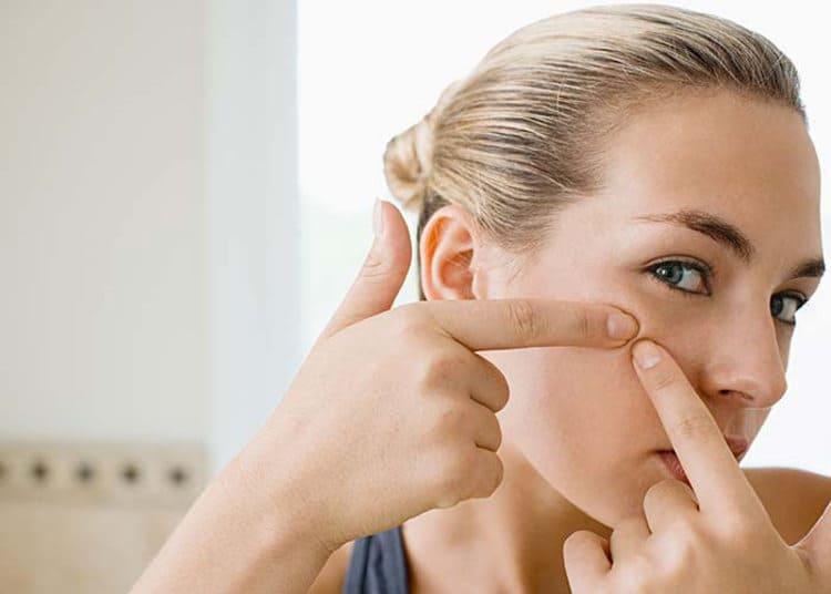 Os melhores medicamentos para as espinhas. Pomada e creme para acne eficaz? Ranking do produto